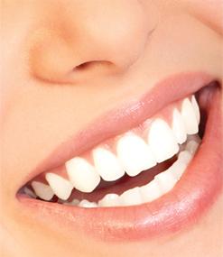 Professional Teeth Whitening San Francisco
